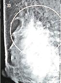 Figura1. Mamografia não detectou câncer palpável avançado com invasão da pele metástases axilares (área circulada) e visualizado no exame tríplice.