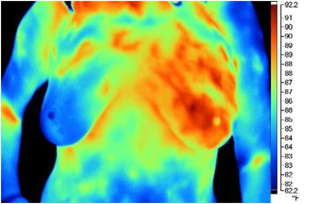 A termografia mostra a mastite actínica à esquerda - Dra. Lucy Kerr